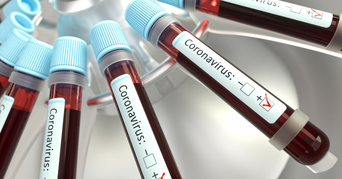 Coronavirus in Ireland: 1,012 confirmed cases of Covid-19 and three more deaths